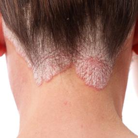 4 Proven Ways to Treat Psoriasis