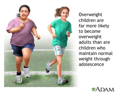 Risk of Children obesity
