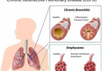 COPD disease risk for smoker