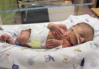 Premature Babies : What you need to know