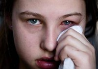 Signs of dry eye