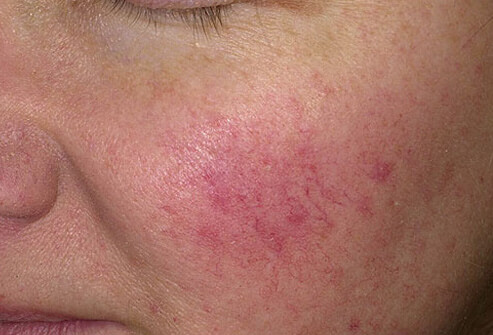 4 Ways To Combat Rosacea