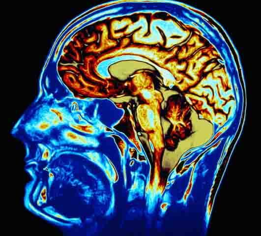 Top 5 Biggest Brain Damaging Habits