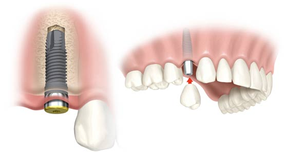 Things To Consider Before Deciding Your Dental Implants