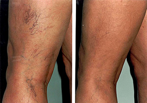 Sclerotherapy Basics—Is It For You?