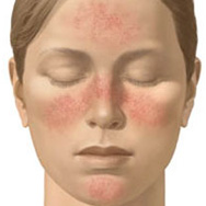 Effects of Rosacea on the self-esteem of an individual