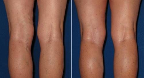 Is It the Right Time to Treat your Varicose Veins?