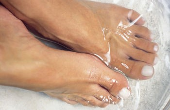 Treating cracked heels and blackened feet
