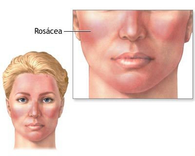 APPLE CIDER VINEGAR AS A NATURAL – Rosacea Treatment