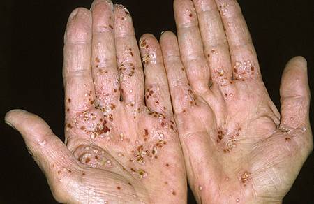 Basic Information about Psoriasis