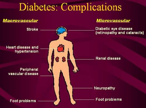 Diabetes : Possible diabetes complications