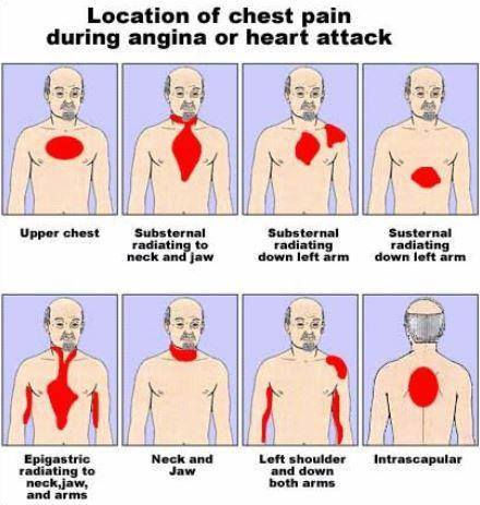 Location of chest pain during angina or heart attack