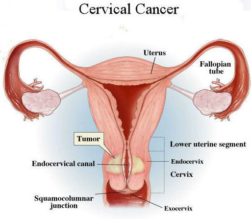 WHO guidance to prevent and control cervical cancer