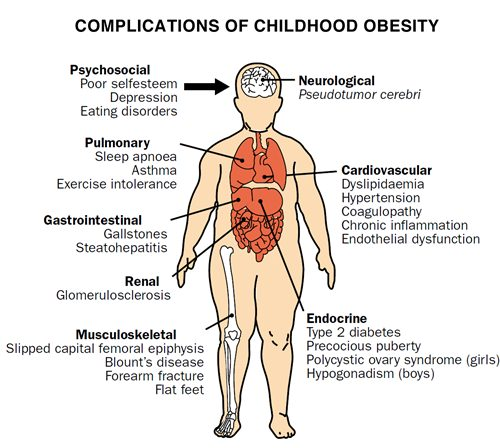 childhood_obesity_complications