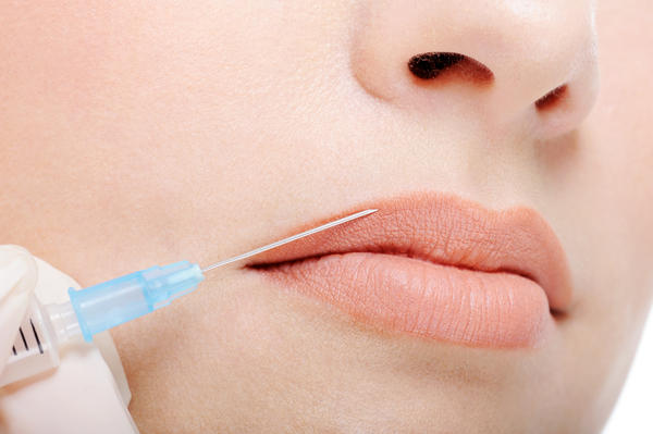 Lip Enhancement – Smart Beauty Guide
