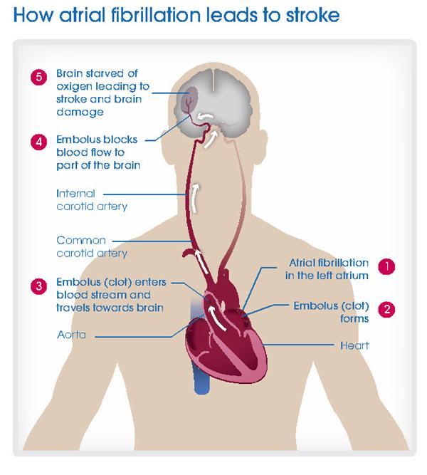 atrial_fibrillation_and_stroke.jpgt_