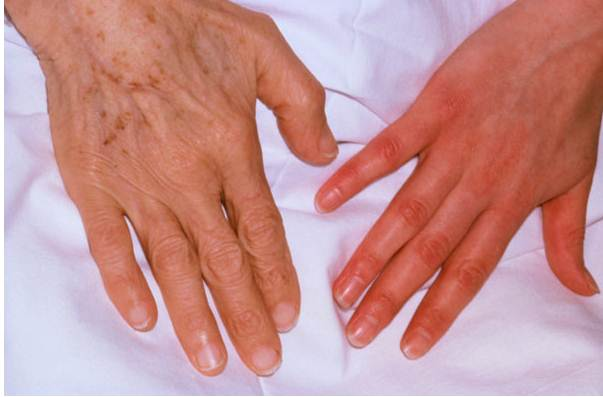 7 Health Problems Your Hands Can Predict
