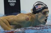 Why are so many Olympians covered in large red circles?