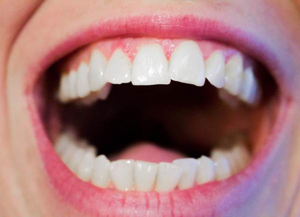 Everything You Should Know about Gingivitis
