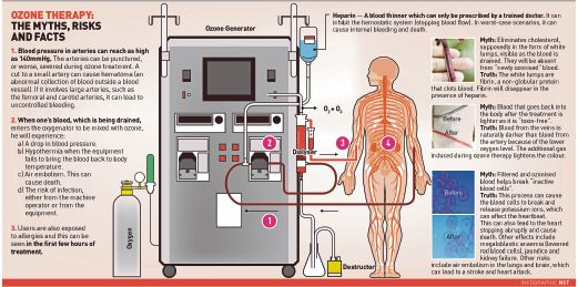 Ozone therapy in Malaysia: How safe is it?
