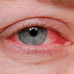 You're Treating Pink Eye the Wrong Way
