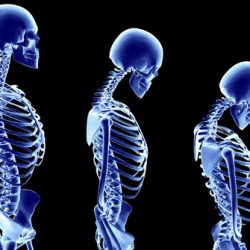 Living With Postmenopausal Osteoporosis: How to Make Your Life Easier?