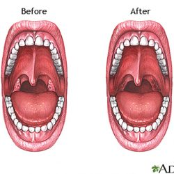 Tonsillectomy in Adults