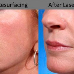 What are the Side Effects of Laser Resurfacing?
