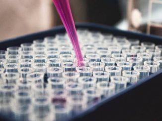 Estrogen Dominance Test