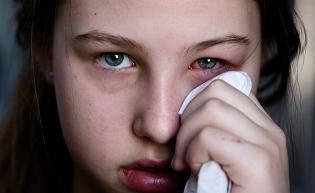 redness eye